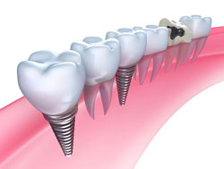 Dental Implants in San Diego, CA